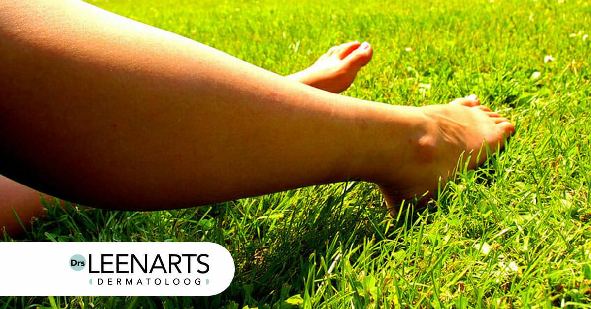 Benen klaar voor de lente? blog Drs Leenarts schilferende droge onderbenen