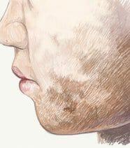Witte vlekken op de huid