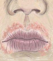 Droge lippen