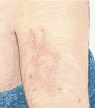 Rode bultjes op bovenarm of benen  (Keratosis Pilaris)