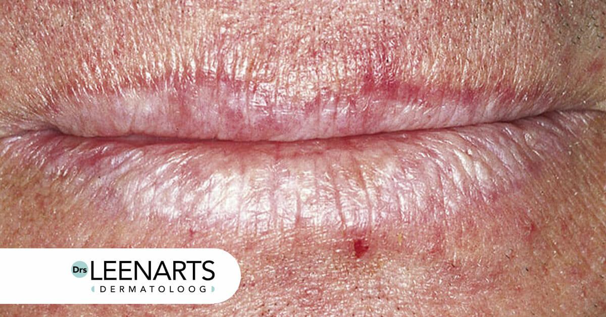 SPF bescherming lippen schade schilfering blaasjes Drs. Leenarts Dermatoloog