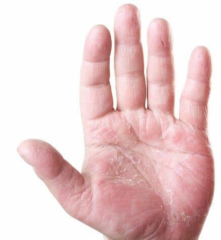 foto hand met handeczeem