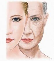 Verouderde huid
