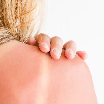 Verbrande schouders. Maling aan uv-straling, Drs Leenarts.