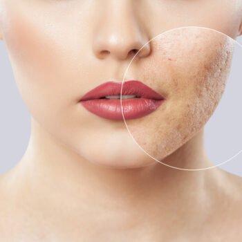 Acné weergegeven. Nederlander intolerant jegens acne-patient.