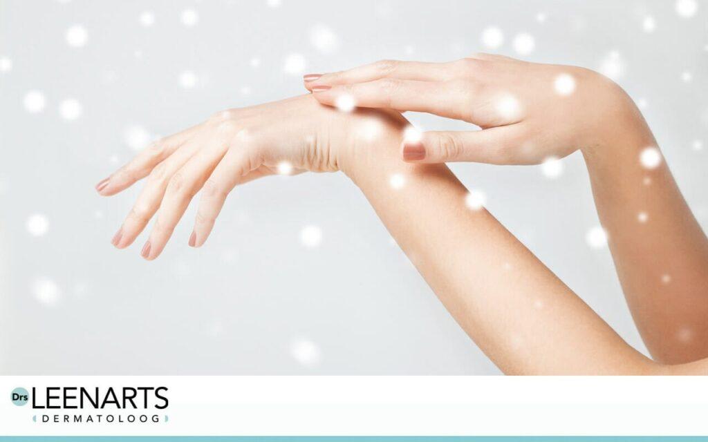 tips bevriezing huid voorkomen