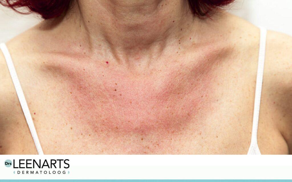 Oorzaak zonnebrand, rode huid