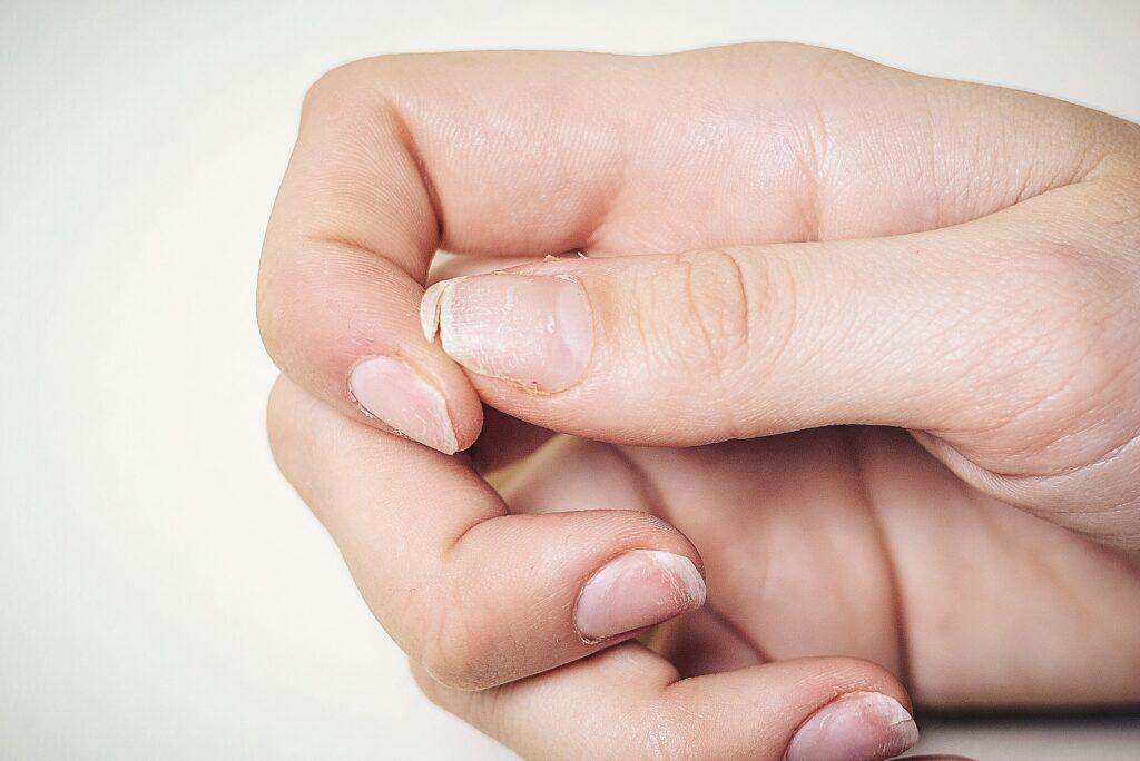 Gespleten broze nagels