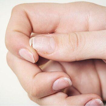 droge broze nagels.