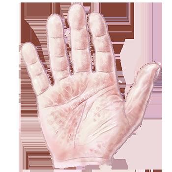 illustratie van handeczeem voor adviespagina van drs leenarts.