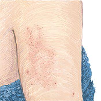 illustratie van rode bultjes op bovenarm of benen voor de adviespagina over keratosis pilaris van drs leenarts.