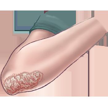 illustratie van psoriasis voor de adviespagina van drs leenarts.