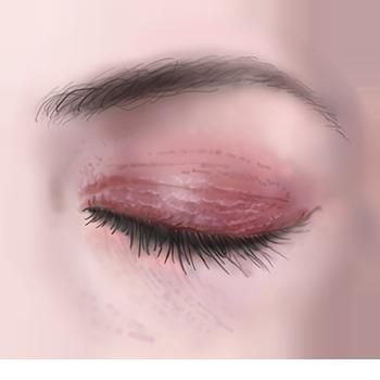 illustratie van huidallergie voor adviespagina drs leenarts.