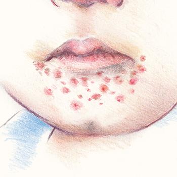 illustratie van krentenbaard voor adviespagina van drs leenarts.
