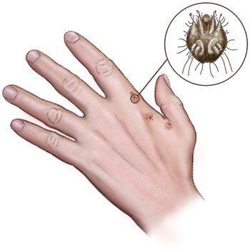 illustratie van een hand met scabiës voor de schurft adviespagina van drs leenarts.