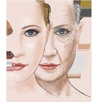 illustratie van huidveroudering voor adviespagina van drs leenarts.