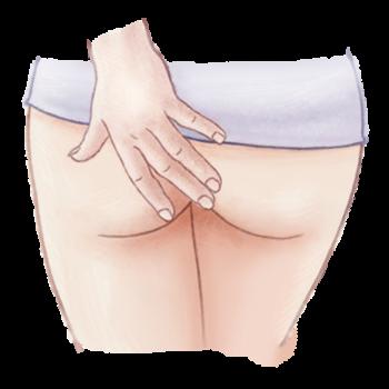 Illustratie van jeuk aan de anus / aambeien voor de adviespagina van drs leenarts.