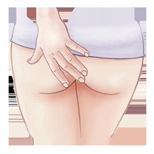 Illustratie van jeuk aan de anus / aambeien