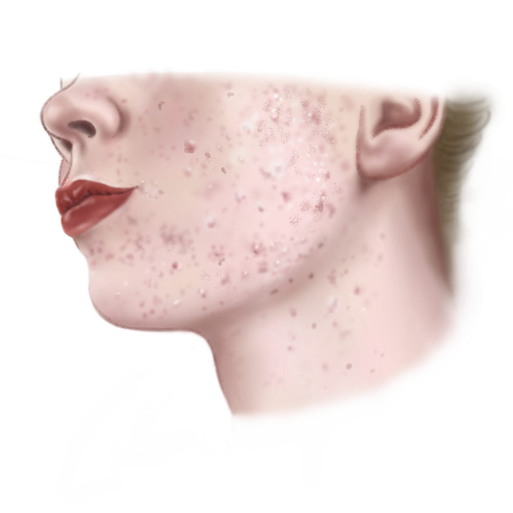 Illustratie Acne