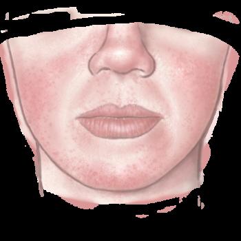 Illustratie van rosacea voor de rosacea adviespagina van drs leenarts.