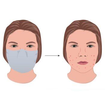 Acné door mondkapje: Maskne. Drs Leenarts