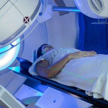 Radiotherapie bestraling foto. Hoe verzorg je de huid na bestraling. Drs Leenarts geeft tips.